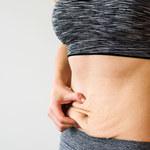 Jak ujędrnić skórę po odchudzaniu? Jest kilka sposobów!