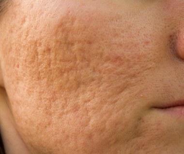Jak usunąć blizny i przebarwienia po trądziku?