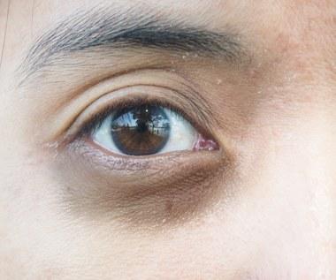 Jak usunąć cienie pod oczami? Skuteczne sposoby