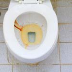 Jak usunąć rdzę z toalety?