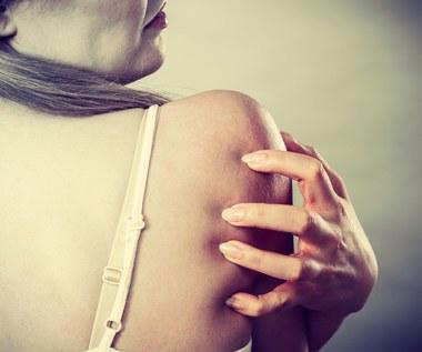 Jak w krótkim czasie pozbyć się trądziku na plecach?