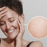 Jak w naturalny sposób ograniczyć przetłuszczanie się skóry twarzy