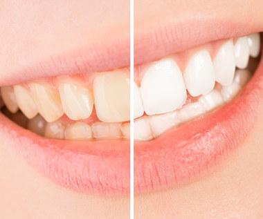 Jak wybielić zęby domowymi sposobami?