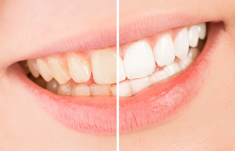 Jak wybielić zęby? /©123RF/PICSEL