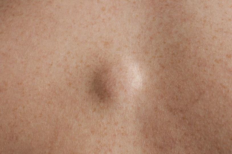 Jak wygląda tłuszczak? /©123RF/PICSEL