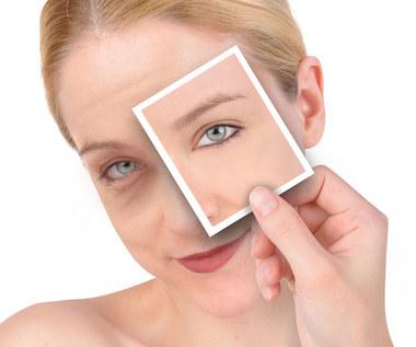 Jak wykorzystać olejek migdałowy do redukcji cieni pod oczami?