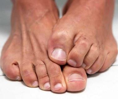 Jak wyleczyć grzybicę paznokci olejem oregano?