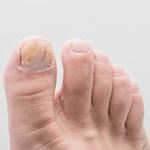 Jak wyleczyć grzybicę paznokci?