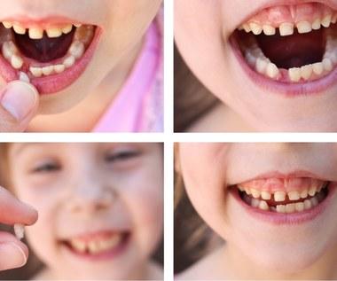 Jak wyrwać dziecku zęba?