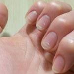 Jak wzmocnić kruche i łamliwe paznokcie? Oto niezawodne kuracje