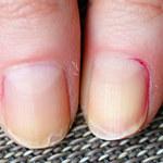 Jak zapobiec łamaniu się paznokci?