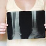 Jak zapobiegać osteoporozie
