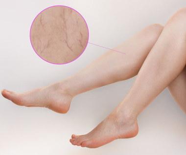 Jak zatuszować naczynka na nogach? Sprawdzone sposoby