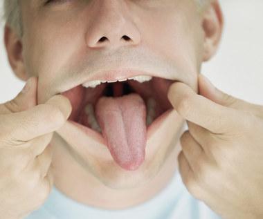 Jak złagodzić oparzenia języka?