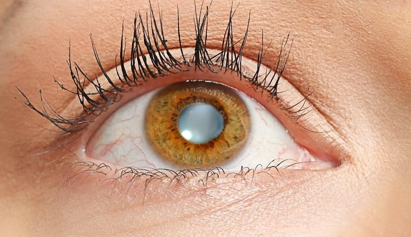 Jak zmienić oczy? /123RF/PICSEL