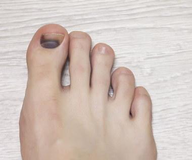 Jak zmniejszyć ból spowodowany przez krwiaka pod paznokciem?