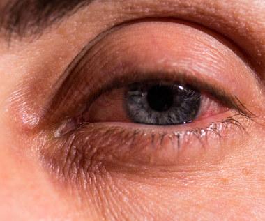 Jak zmniejszyć opuchliznę oka?