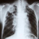 Jak zmniejszyć ryzyko raka płuc ?