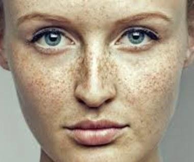 Jak zrobić tonik na trądzik i przebarwienia skóry?