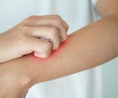 Jaka dieta przy atopowym zapaleniu skóry?