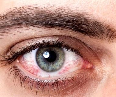 Jakie objawy mogą świadczyć o problemach ze wzrokiem?