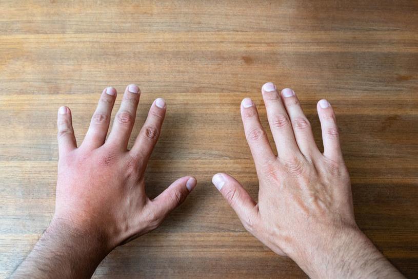 Jakie objawy na dłoniach świadczą o chorobie? /©123RF/PICSEL