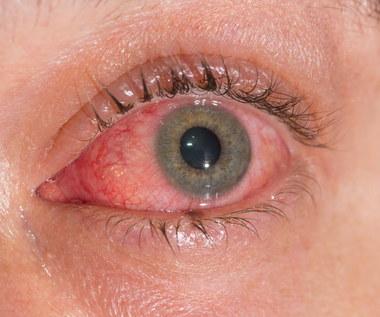 Jakie są przyczyny łzawienia oczu?