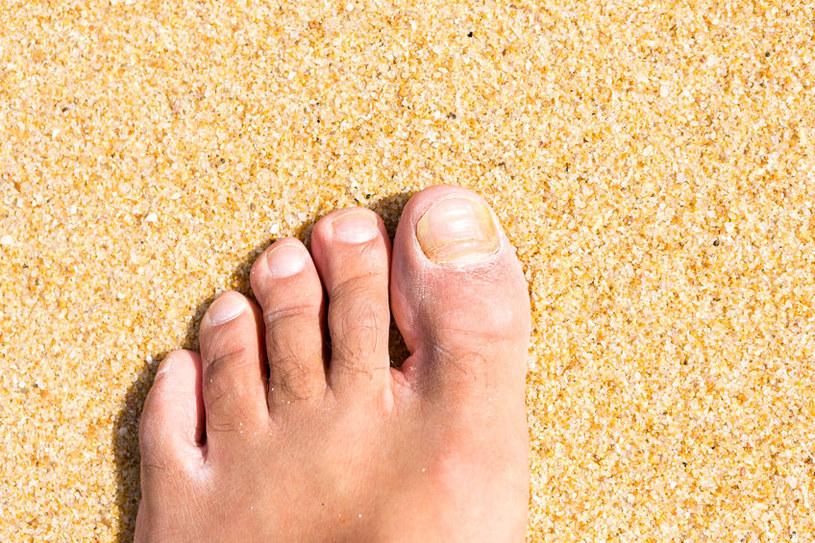 Jakie są przyczyny żółknięcia paznokci? /©123RF/PICSEL