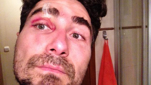 Jan Kliment uległ wypadkowi podczas treningu  - fot. Facebook /