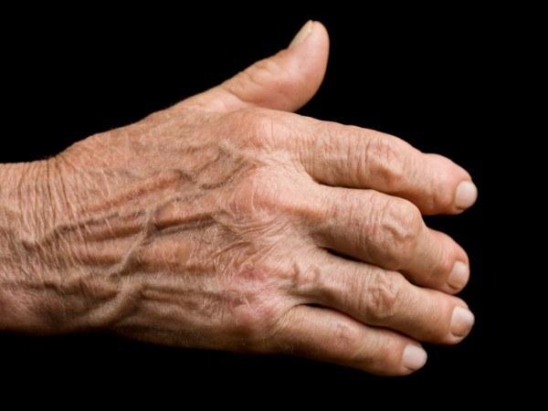 Jęczmień na artretyzm /© Photogenica