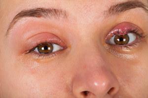 Jęczmień na oku. Bolesny znak spadku odporności