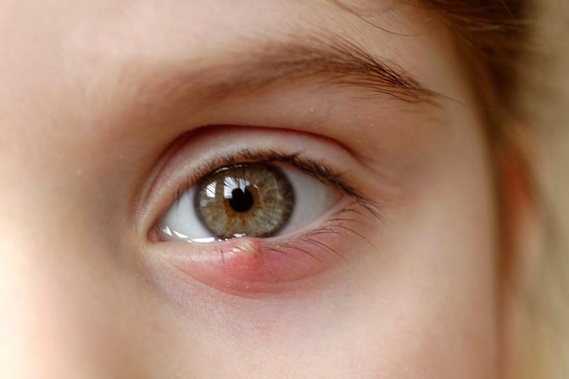 Jęczmień na oku - jak usunąć domowymi sposobami? /123RF/PICSEL