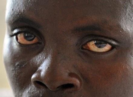 Jeden z pacjentów ośrodka w Paynesville, 7 grudnia 2008 /AFP