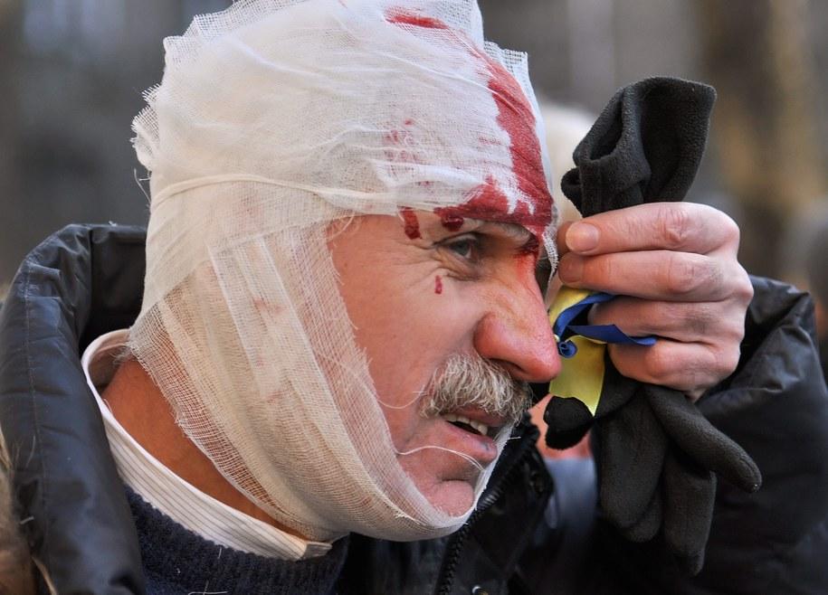 Jeden z poszkodowanych w trakcie starć /DANYLO PRYHODKO /PAP/EPA