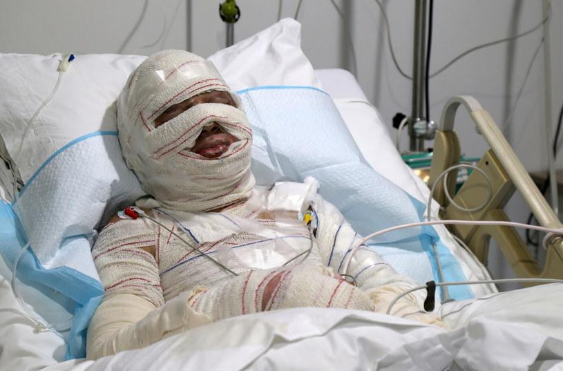Jeden z poszkodowanych w wybuchu cysterny z paliwem /PAP/EPA/NABIL MOUNZER /PAP