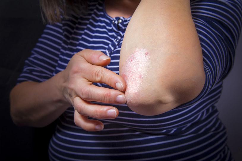 Jedną z najważniejszych kwestii w walce z AZS jest utrzymanie optymalnego nawilżenia skóry. /123RF/PICSEL