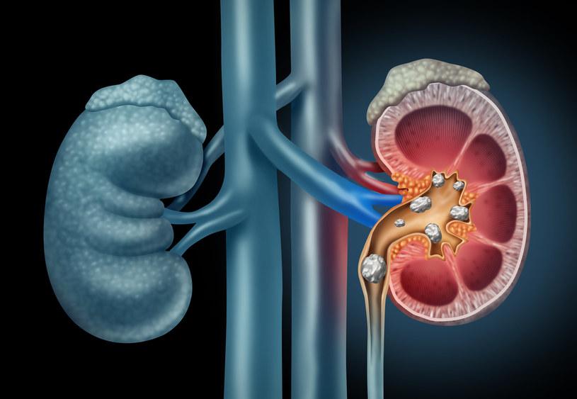 Jednym ze skutków ubocznych diety, może być powstawanie kamieni nerkowych /123RF/PICSEL