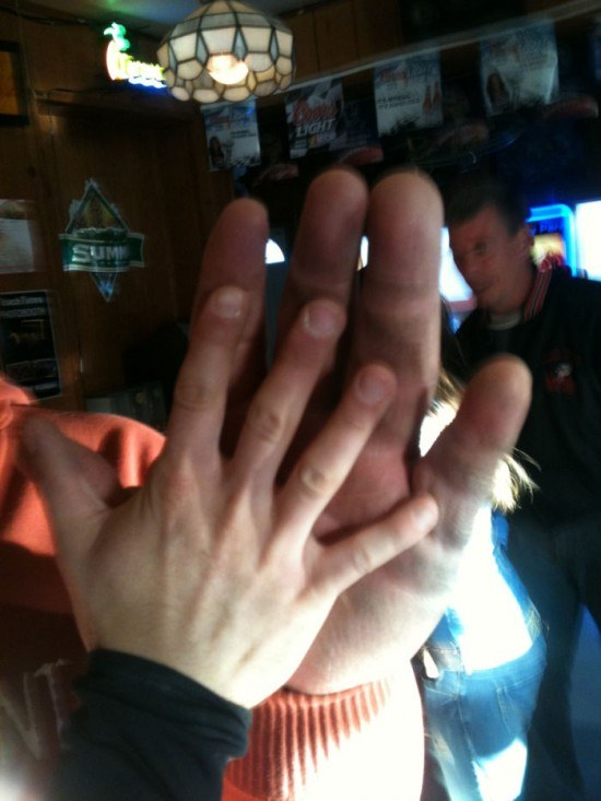 Jeff po prostu ma wielkie ręce, nie jest to wynik żadnej choroby /materiały prasowe