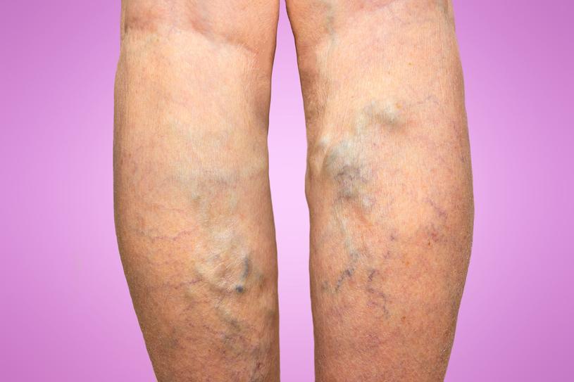 Jeśli choroba jest zaawansowana, a żylaki liczne, grube i poskręcane, flebolog przeprowadzi niezbędną operację /123RF/PICSEL