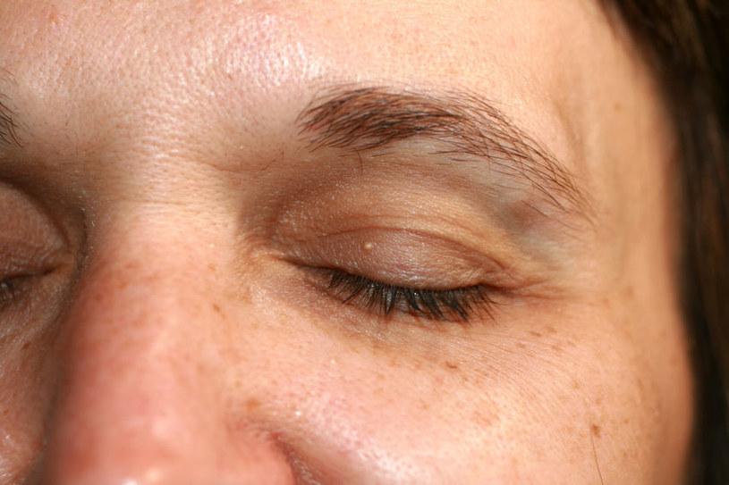 Jeśli cienie pod oczami są efektem złej diety, zmęczenia czy stresu, należy jak najszybciej zadbać o swój organizmc /123RF/PICSEL