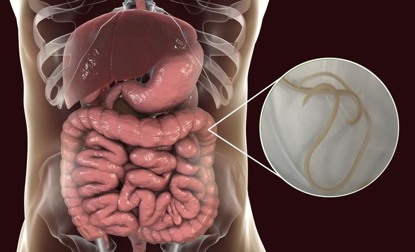 Jeśli dorosła glista dostaje się do organizmu, żyje w jelitach, powodując gorączkę, obrzęk i zapalenie płuc /123RF/PICSEL