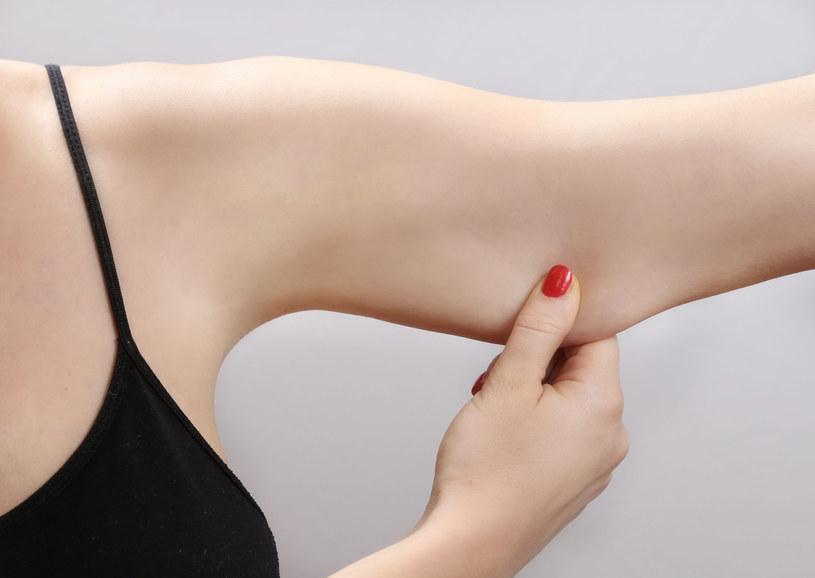 Jeśli po odchudzaniu masz bardzo wiotką skórę ramion, wybierz się do salonu urody na zabieg endermologii /123RF/PICSEL