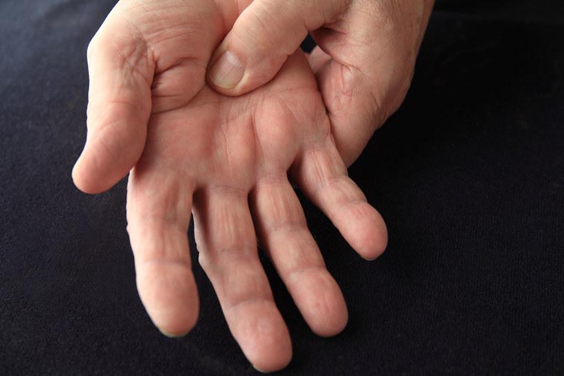 """Jeśli wydaje ci się, że twoje dłonie są """"szponiaste"""", zgłoś się do lekarza /123RF/PICSEL"""