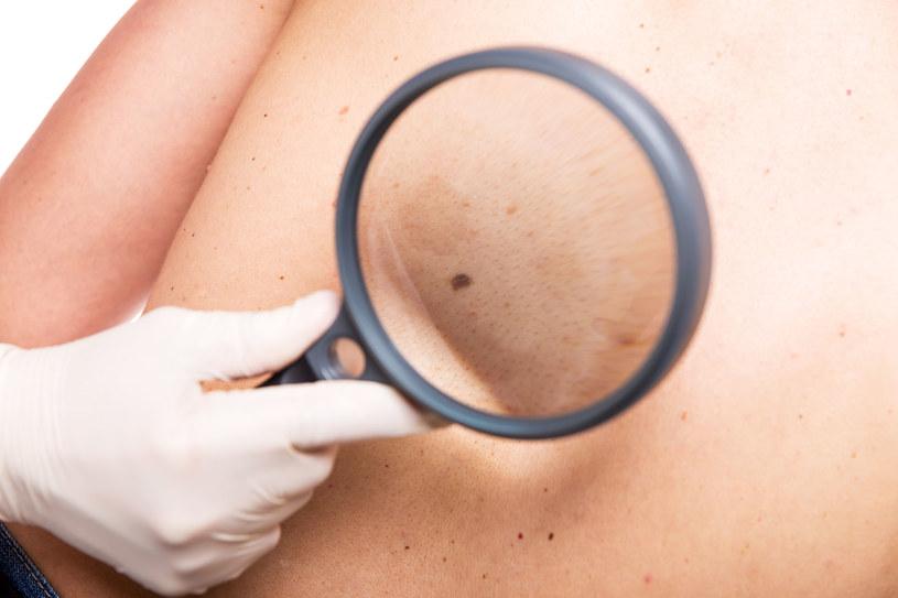 Jeśli zauważysz, że coś podejrzanego dzieje się z Twoim znamieniem, niezwłocznie udaj się do dermatologa lub chirurga-onkologa /123RF/PICSEL