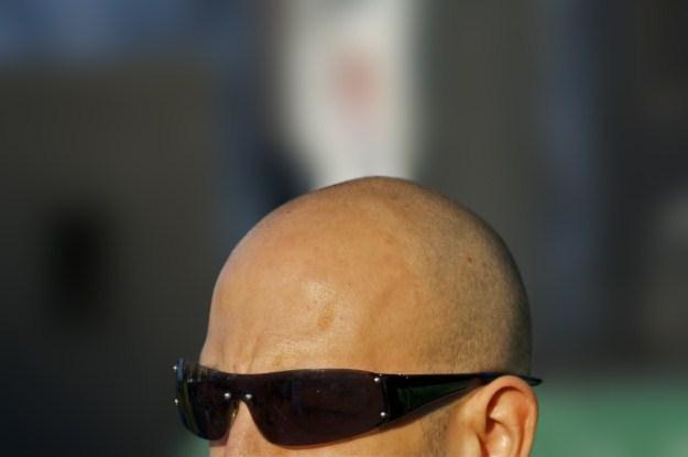 Jesteśmy już coraz bliżej pozbycia się problemu łysienia /stock.xchng