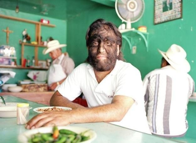 Jesus Aceves z Meksyku, jeden z nielicznych chorych na hypertrichosis na świecie /East News