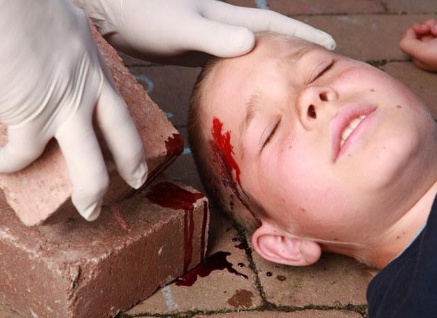 Jeżeli dziecko straci przytomność, poproś kogoś, żeby zadzwonił po pogotowie. /123RF/PICSEL