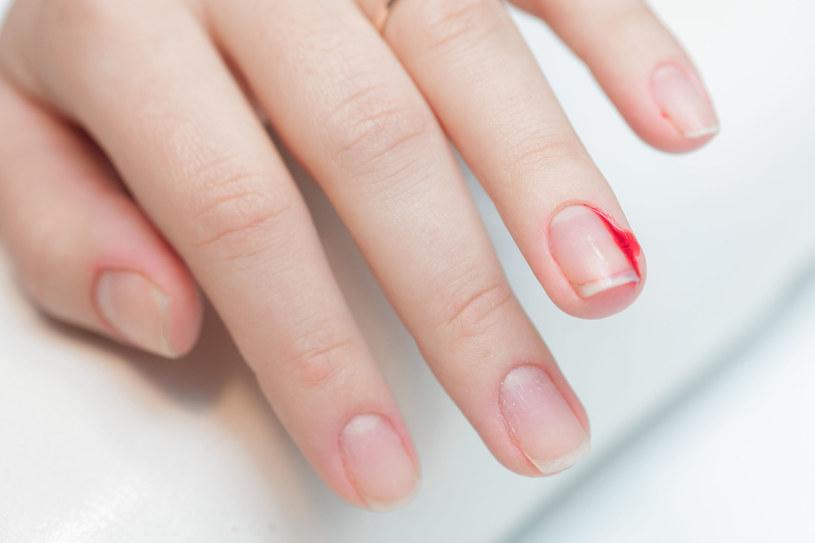 Jeżeli rana w ciągu dwóch dni nie goi się, zaleca się wizytę u lekarza /123RF/PICSEL