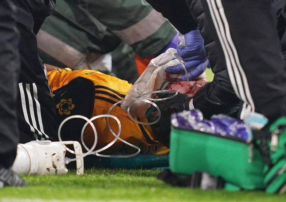 Jimenez przeszedł operację czaszki i czuje się dobrze /John Walton    /PAP/EPA