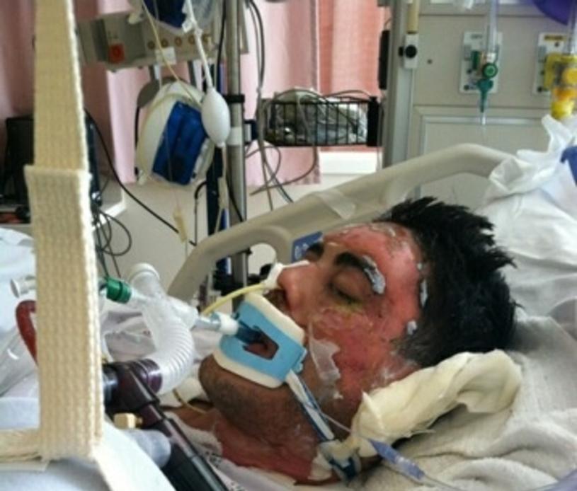 Jonathatn po pożarze przez dwa miesiące był w śpiączce /East News
